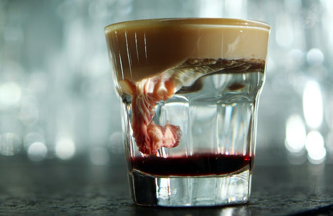 Brain Hemorrhage Shot
